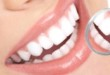 10101 White Teeth