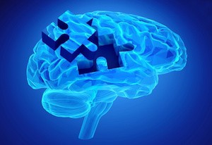 Human brain research and memory loss as symbol of alzheimer's concept with missing pieces of the puzzle